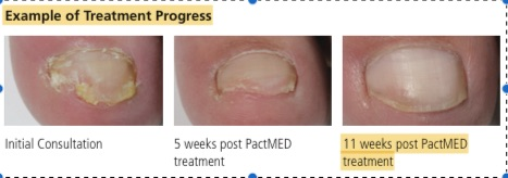 Treatment of Fungal Nail infections using PACT
